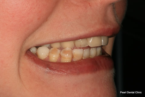 Lower Teeth Gap/ Discoloured Before After - Right discoloured/ gap teeth