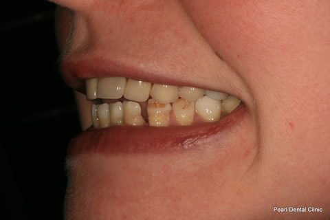 Lower Teeth Gap/ Discoloured Before After - Left discoloured/ gap teeth