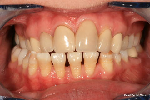 Lower Teeth Gap/ Discoloured Before After - Full arch discoloured/ gap teeth