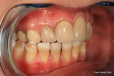 Lower Teeth Gap/ Discoloured Before After - Right full arch discoloured/ gap teeth