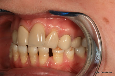 Lower Teeth Gap/ Discoloured Before After - Left full arch discoloured/ gap teeth