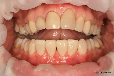 Lower Teeth Gap/ Discoloured Before After - Full upper/lower arch teeth composite veneers