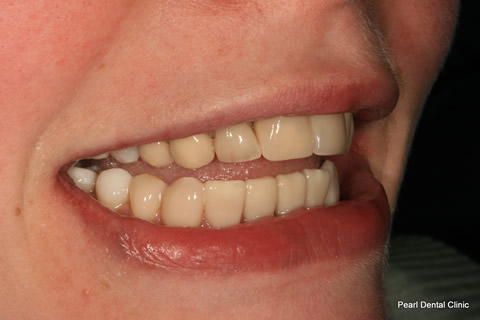 Lower Teeth Gap/ Discoloured Before After - Upper/lower composite veneers