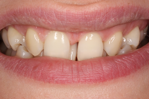 Missing Incisors Before After - Upper front teeth gap