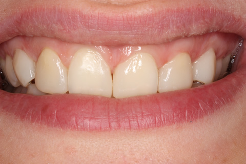 Missing Incisors Before After - Upper front teeth composite veneers