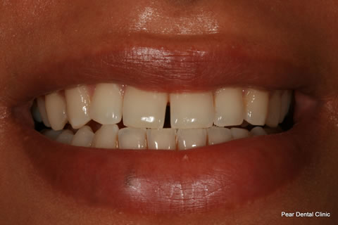 Upper Teeth Gap Before After - Front teeth gap