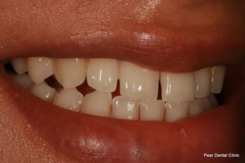 Upper Teeth Gap Before After - Left upper front teeth gap