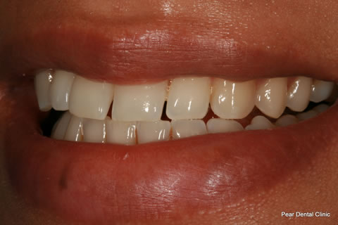 Upper Teeth Gap Before After - Upper front teeth gap