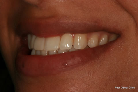 Upper Teeth Gap Before After - Right upper teeth composite veneers