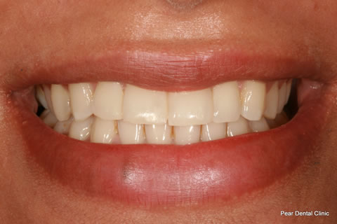 Upper Teeth Gap Before After - Upper teeth composite veneers