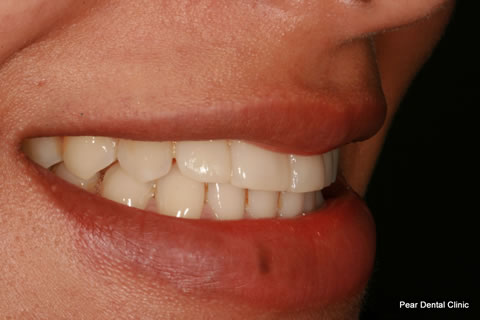 Upper Teeth Gap Before After - Left upper teeth composite veneers