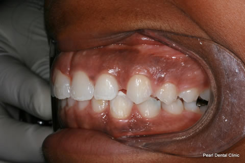 Canine/ Incisor gap Before After - Upper/lower teeth gap