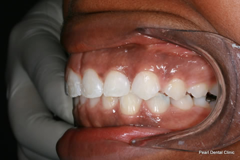 Canine/ Incisor gap Before After - Upper/lower teeth composite veneers