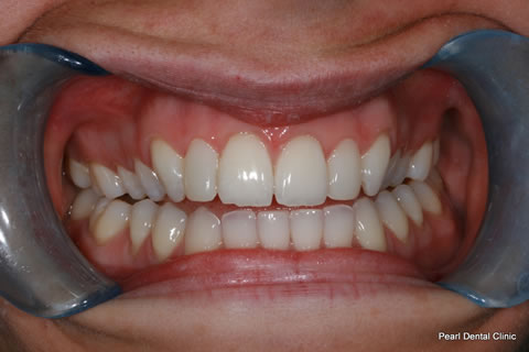 Upper Front Teeth Before After - Upper teeth composite veneers