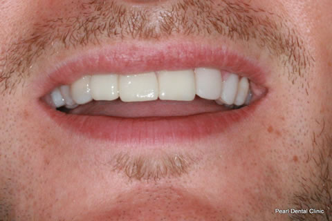 Before Composite Veneers Before After- Front upper arch teeth