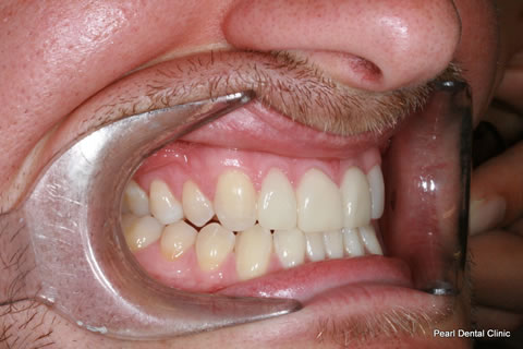Before Composite Veneers Before After- Right full upper/lower arch teeth