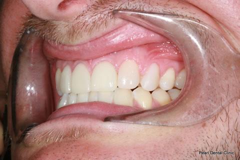 Before Composite Veneers Before After- Left full upper/lower arch teeth