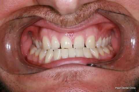 Before Composite Veneers Before After- Full upper/lower arch teeth