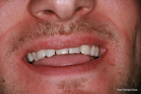 Before Composite Veneers Before After- Full upper teeth