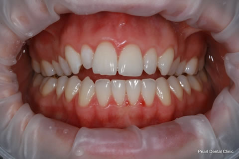 Composite Bonding Before After - Full arch teeth