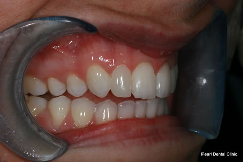 Veneers Gallery 3 Pearl Dental Clinic