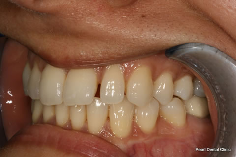 Lateral Composite Bonding/ Whitening Before After - Right upper teeth