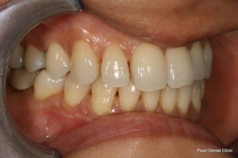 Lateral Composite Bonding/ Whitening Before After - Left upper teeth
