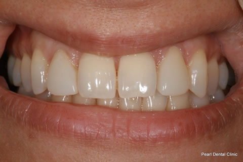 Lateral Composite Bonding/ Whitening Before After - Front upper teeth composite veneer