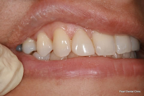 Lateral Composite Bonding/ Whitening Before After - Right upper teeth composite veneer