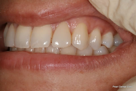 Lateral Composite Bonding/ Whitening Before After - Left upper teeth composite veneer