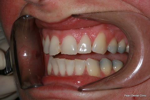 Composite Bonding Before After - Left upper front teeth