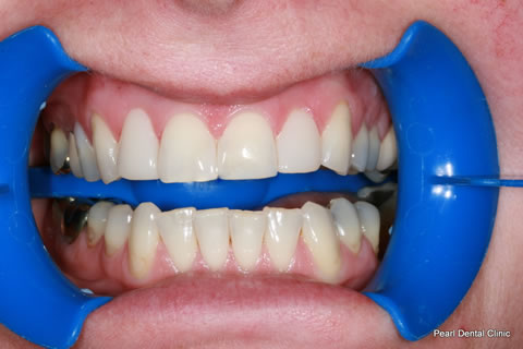Composite Bonding Before After - Full arch upper front teeth composite bonding