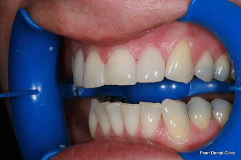 Composite Bonding Before After - Left full arch upper front teeth composite bonding