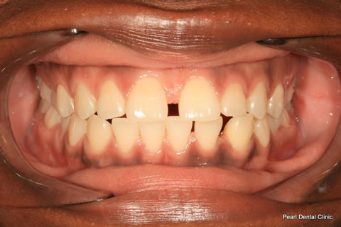 Before Teeth Gap/ Whitening - Full upper arch teeth
