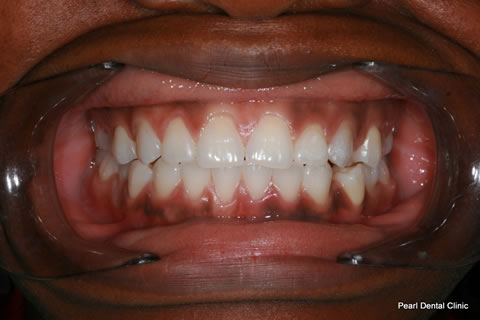 After Teeth Gap/ Whitening - Full upper arch teeth composite bonding