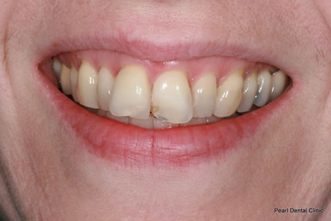 Composite Bonding Before After - Two upper front teeth