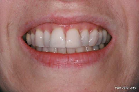 Composite Bonding Before After - Upper front teeth composite bonding