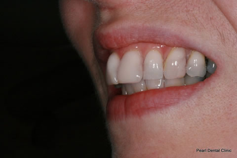 Composite Bonding Before After - Left upper front teeth composite bonding