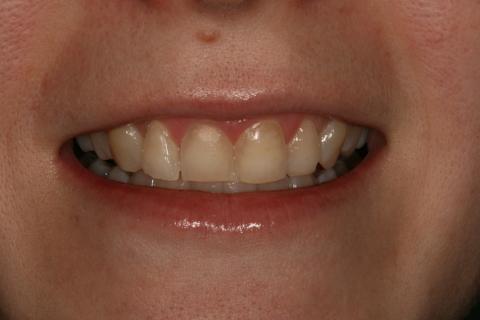 Upper Teeth Whitening/ Veneers Before After - Front upper teeth