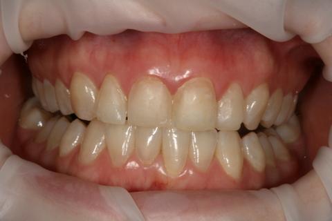 Upper Teeth Whitening/ Veneers Before After - Full upper/lower arch teeth