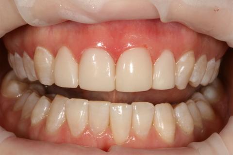 Upper Teeth Whitening/ Veneers Before After - Full arch teeth whitened/ veneers