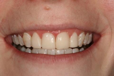 Upper Teeth Whitening/ Veneers Before After - Front upper teeth whitened/ veneers