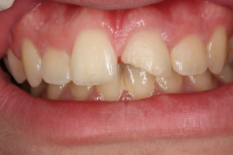 Composite Bonding Before After - Upper front teeth