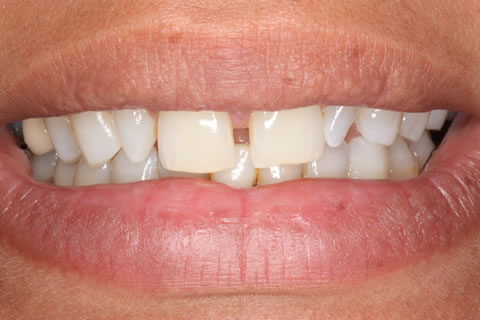 Composite Bonding Before After - Front four gap teeth