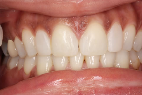 Composite Bonding Before After - Full arch front composite teeth bonding