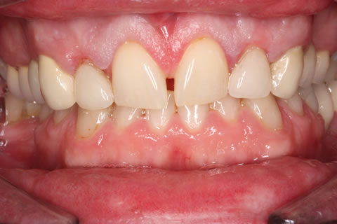 Composite Bonding Before After - Full arch front four gap teeth