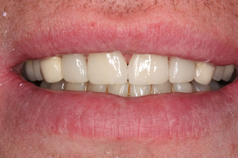 Composite Bonding Before After - Front composite teeth bonding