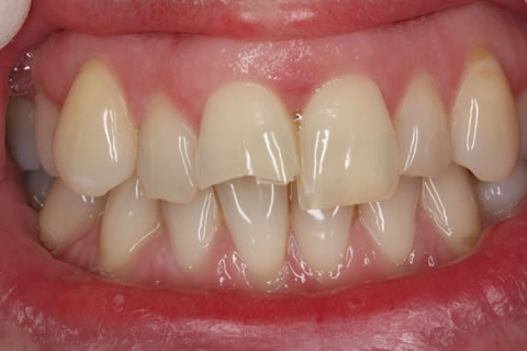Composite Bonding Before After - Front four gap teeth incisor