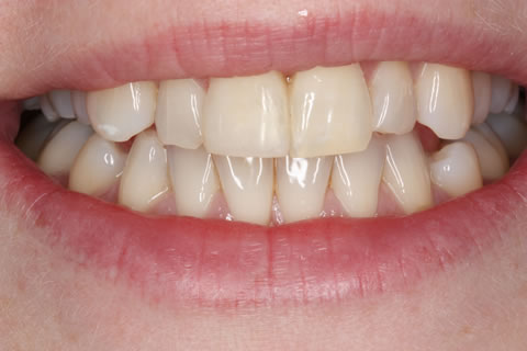 Composite Bonding Before After - Front four gap teeth composite bonding