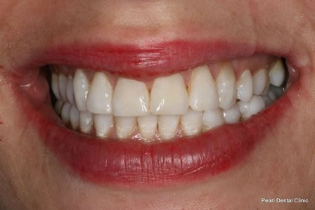 Dicsoloured Front Tooth Before After - Front tooth composite veneer
